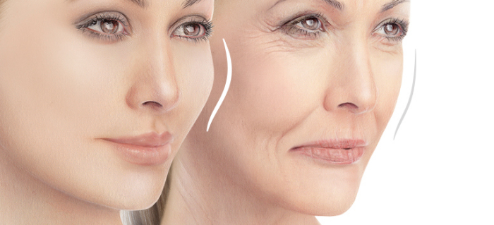 Basics of Facial Fillers