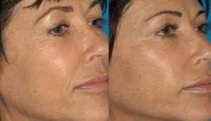 Microneedling-Before-and-After-Associ-in-Derm