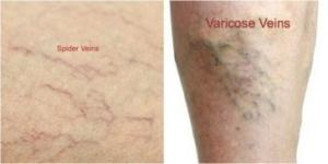 Varicose Veins vs. Spider Veins