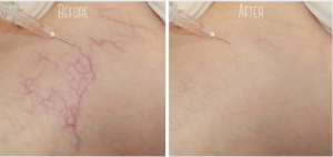 sclerotherapy- before and after