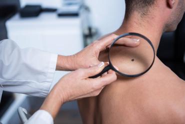 Pre-Cancerous Lesions