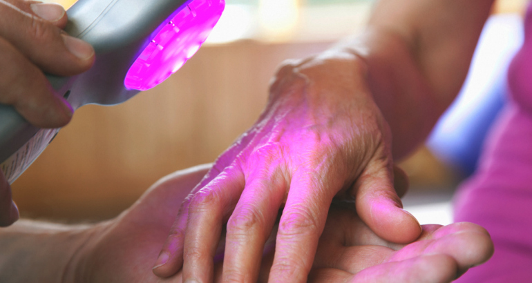 Xtrac Phototherapy for Psoriasis